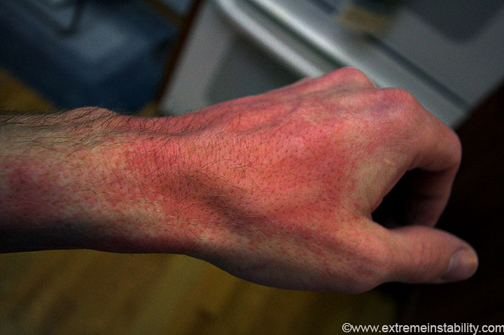 Burn From Boiling Water Water Ionizer